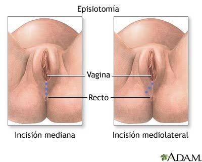 La vagina despues del parto